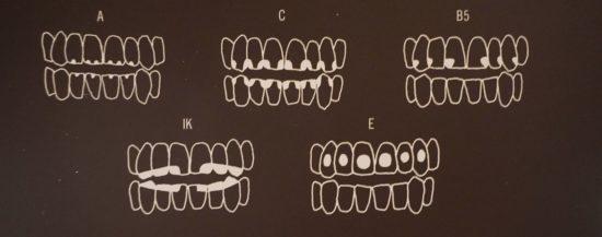 denti-maya-verona